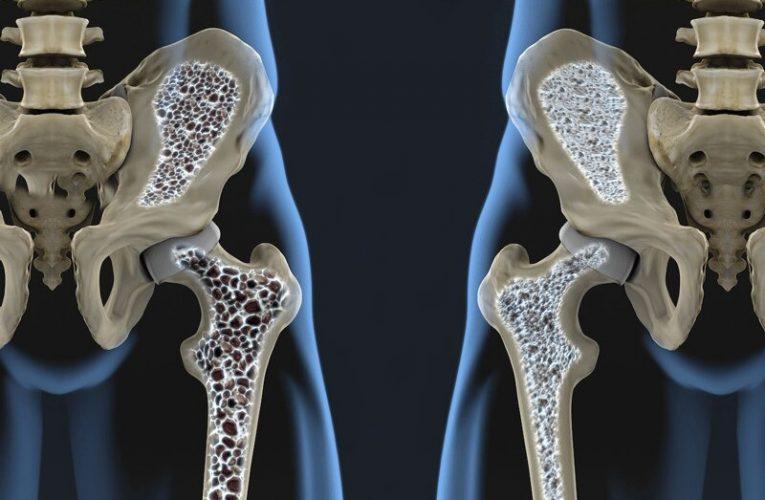 ٨ نکته مهم برای مقابله با پوکی استخوان
