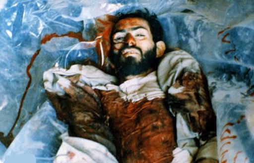 شهیدی که پس از یازده بار مجروحیت شهید شد + تصاویر